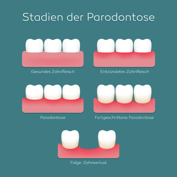 Parodontosebehandlung in Darmstadt