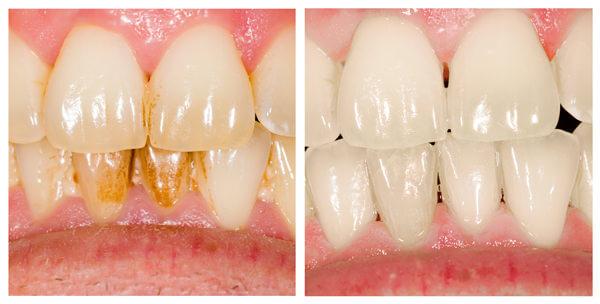 Ästhetische Zahnheilkunde Zahnarzt in Darmstadt