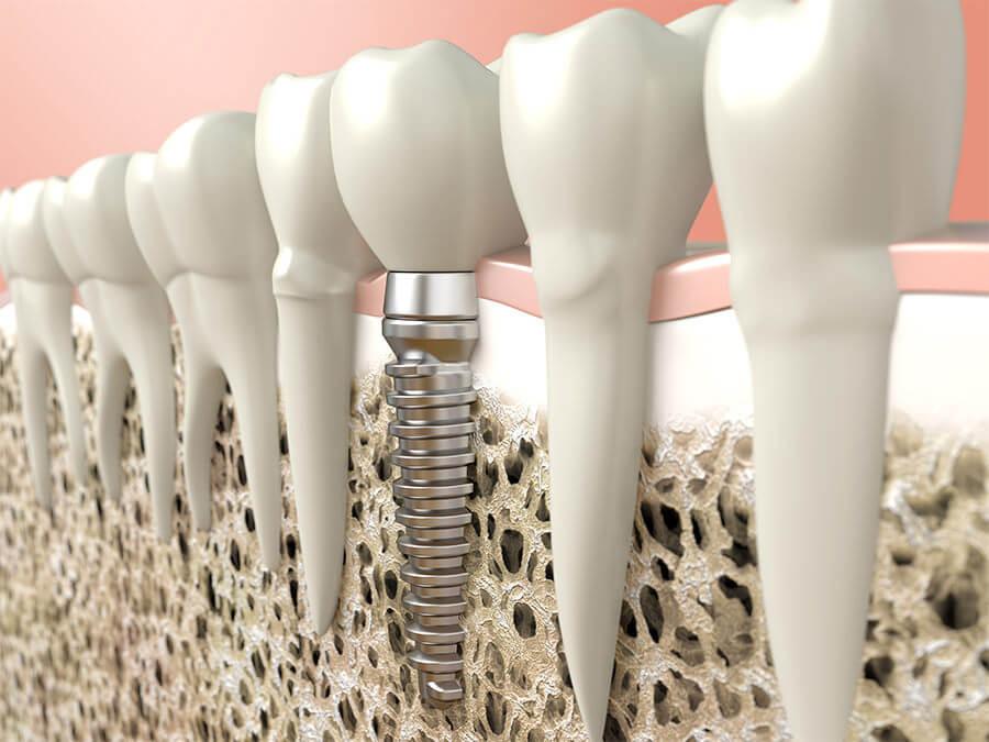Zahnimplantate Darmstadt