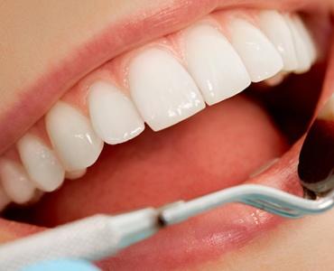 Kosten PZR Professionelle Zahnreinigung