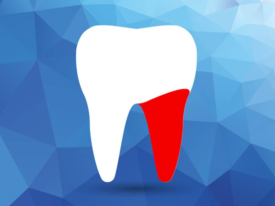 Endodontie Zahnarzt Darmstadt